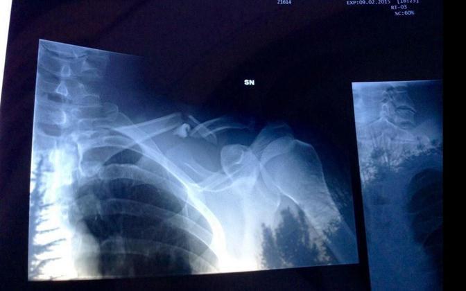 La radiografia della frattura postata su Twitter